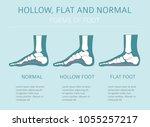 foot deformation types  ... | Shutterstock .eps vector #1055257217