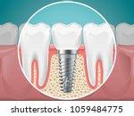 stomatology illustrations.... | Shutterstock .eps vector #1059484775