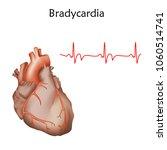 human heart. bradycardia.... | Shutterstock .eps vector #1060514741