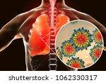 measles viruses in human...   Shutterstock . vector #1062330317