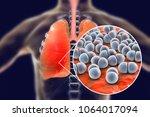 pneumococcal pneumonia  medical ...   Shutterstock . vector #1064017094