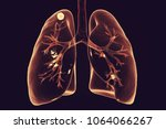 secondary tuberculosis in lungs ... | Shutterstock . vector #1064066267