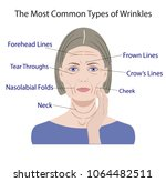 common types of facial wrinkles.... | Shutterstock .eps vector #1064482511