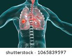 lung cancer  medical concept ... | Shutterstock . vector #1065839597