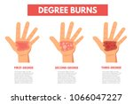 degree burns of skin.... | Shutterstock .eps vector #1066047227
