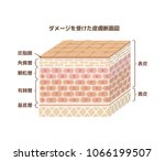 layer of damaged skin... | Shutterstock .eps vector #1066199507