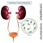 urinary tract infection on... | Shutterstock .eps vector #1066881641