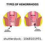 two types of hemorrhoids are... | Shutterstock .eps vector #1068101951