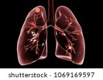 secondary tuberculosis in lungs ... | Shutterstock . vector #1069169597