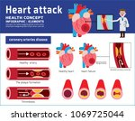 heart attack infographic....