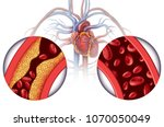chelation therapy and heart... | Shutterstock . vector #1070050049