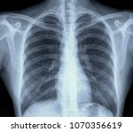 lung chest x ray images of... | Shutterstock . vector #1070356619