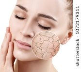 zoom circle shows dry facial... | Shutterstock . vector #1072179311