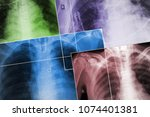 set of the x ray images of... | Shutterstock . vector #1074401381