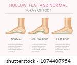 Foot Deformation Types  ...