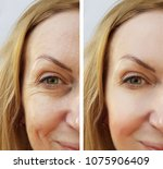 woman face wrinkles before and... | Shutterstock . vector #1075906409