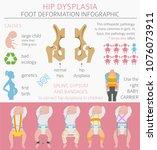 foot deformation types  ...   Shutterstock .eps vector #1076073911