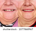 teeth before and after... | Shutterstock . vector #1077868967