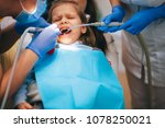 a little girl is curing a tooth ...   Shutterstock . vector #1078250021