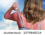 Sunburn Concept. Young Woman...