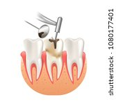 clean caries by tooth dental... | Shutterstock .eps vector #1080177401