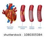 myocardial infarction. 3d... | Shutterstock .eps vector #1080305384
