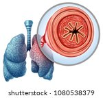 copd chronic obstructive... | Shutterstock . vector #1080538379