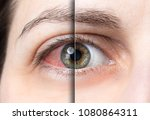 red eye before and after... | Shutterstock . vector #1080864311