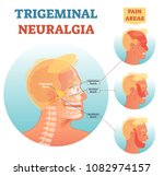 trigeminal neuralgia medical... | Shutterstock .eps vector #1082974157