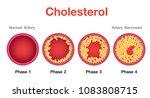 cholesterol in artery  health... | Shutterstock .eps vector #1083808715