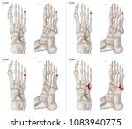 collection arthritis in  little ... | Shutterstock . vector #1083940775