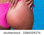 woman with sunburned sunbathing ... | Shutterstock . vector #1084339274