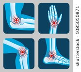 human joints with pain rings.... | Shutterstock .eps vector #1085050871