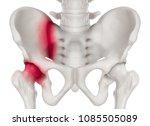 human pelvis anterior view red... | Shutterstock . vector #1085505089