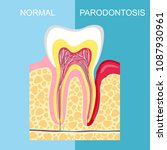 healthy tooth and tooth with... | Shutterstock .eps vector #1087930961