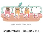 tooth with root canal treatment ... | Shutterstock . vector #1088057411