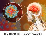 measles induced encephalitis ...   Shutterstock . vector #1089712964