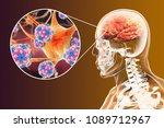 encephalitis caused by...   Shutterstock . vector #1089712967