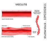 vasculitis is damange of blood... | Shutterstock .eps vector #1092202811