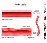 vasculitis is damange of blood... | Shutterstock .eps vector #1092202811