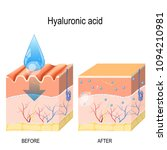 hyaluronic acid. skin care... | Shutterstock .eps vector #1094210981