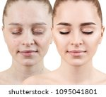 woman with acne before and... | Shutterstock . vector #1095041801