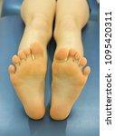 young caucasian patient's feet... | Shutterstock . vector #1095420311