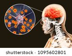 viral meningitis and... | Shutterstock . vector #1095602801
