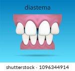 dental illustration showing...   Shutterstock .eps vector #1096344914
