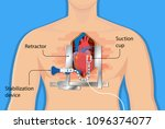 open heart surgery | Shutterstock .eps vector #1096374077