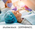 endoscopic sinus surgery. laser ... | Shutterstock . vector #1099484651