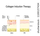 collagen induction therapy ... | Shutterstock .eps vector #1100157434