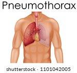 a human anatomy of pneumothorax ...   Shutterstock .eps vector #1101042005