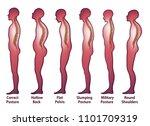 skeleton spine posture | Shutterstock .eps vector #1101709319